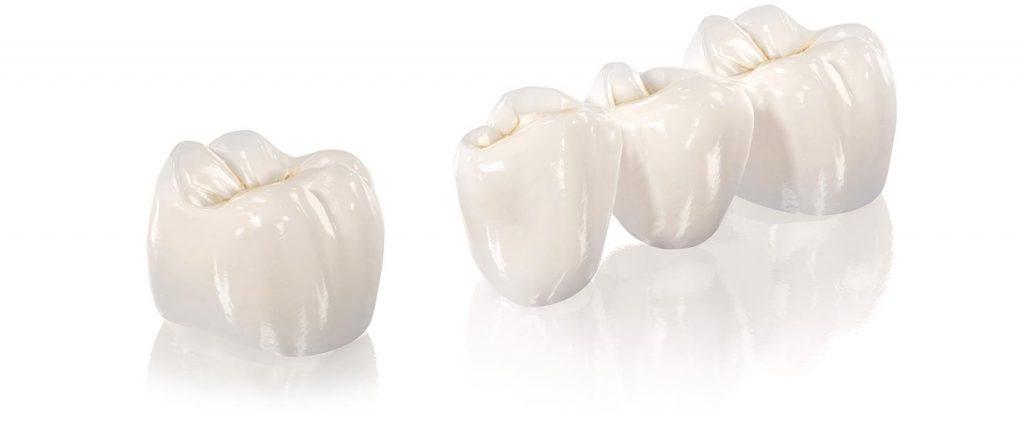 Grafisches Modell einer Zahnkrone und einer Zahnbrücke aus Keramik
