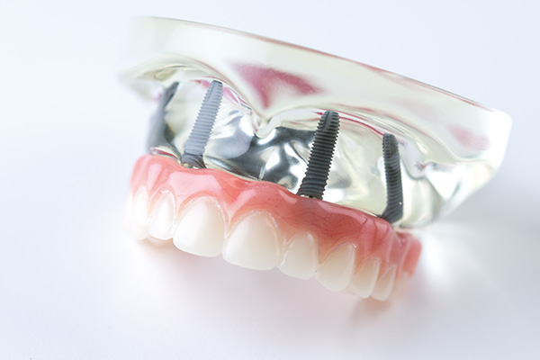 All-on-4 Modell zeigt festen Zahnersatz auf 4 Zahn-Implantaten
