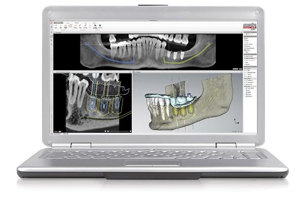 Navigierte Implantologie für feste Zähne am Laptop-Modell